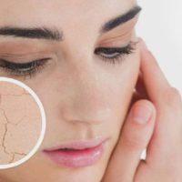 Сухая кожа тела причины и лечение