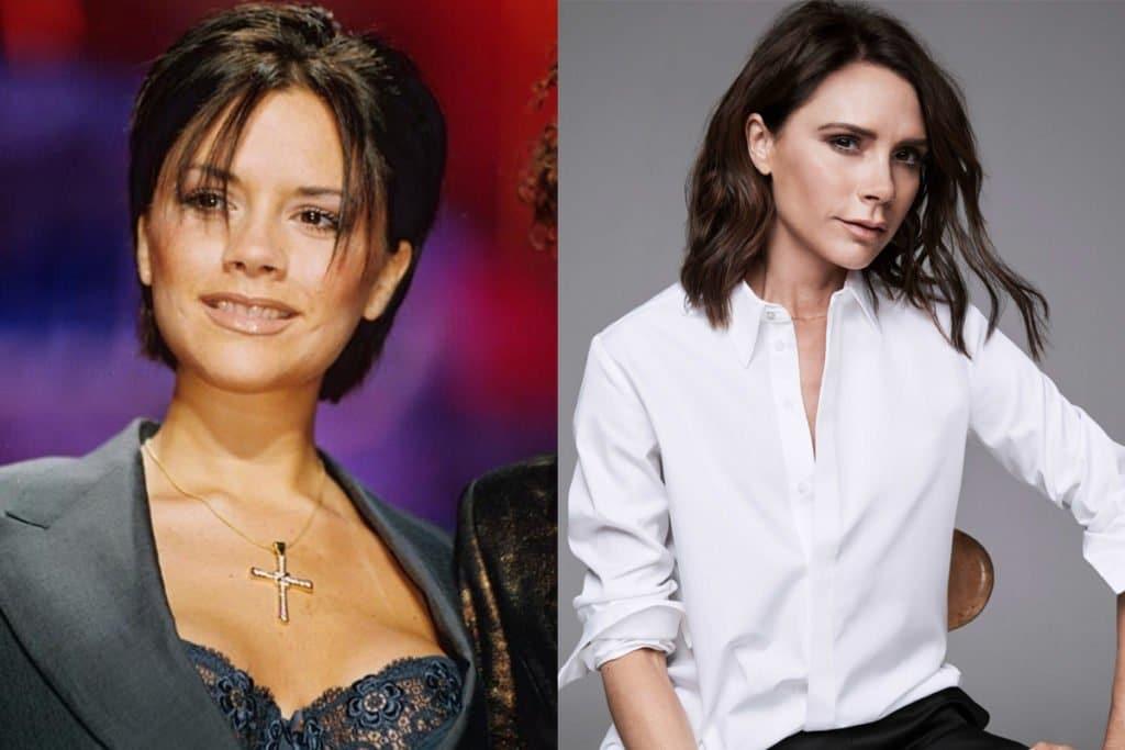Виктория Бекхэм до и после