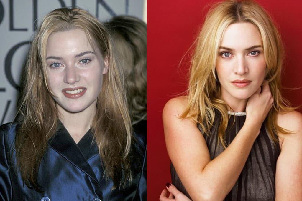 Кейт Уинслет до и после