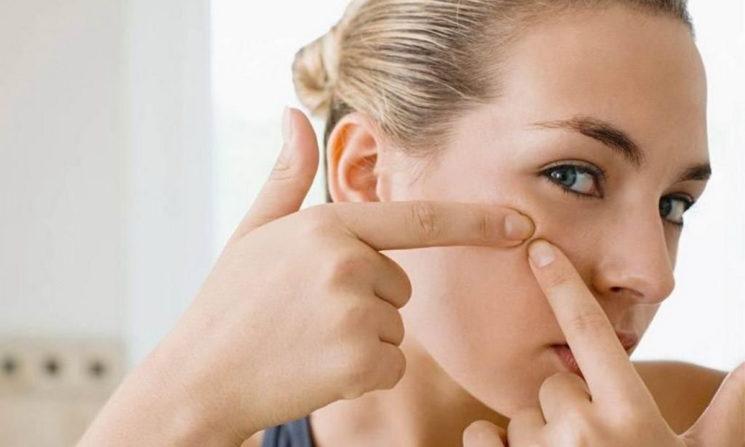 Как избавиться от черных точек на лице с помощью косметики