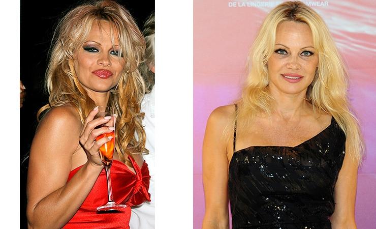 Памела Андерсон фото до и после алкогольной завимисоти