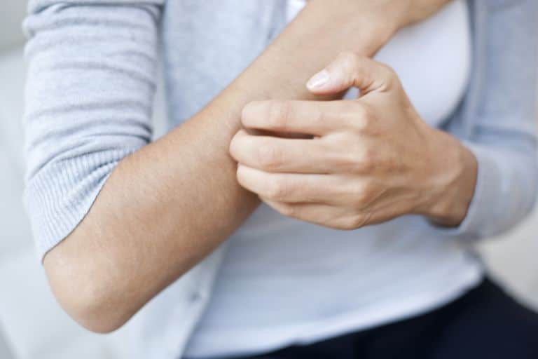 Симптомы стресса Появление сыпи на коже
