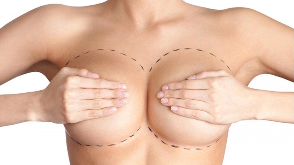 как подобрать грудной протез